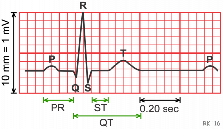 labeled EKG diagram